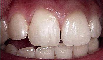 Hampaiden Kiillevaurion Korjaaminen